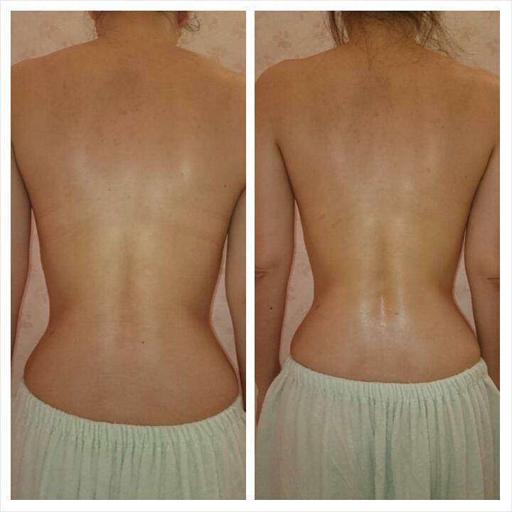 筋膜バストアップスタイル 背中 腰の比較写真